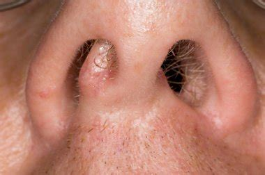 nose cancer nhs direct wales encyclopaedia cancer of the nose and sinus