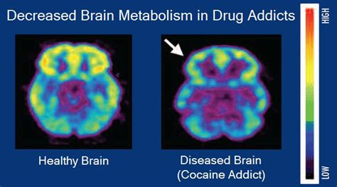 Do Studies Show Early Detox And Impatient Help Addiaction by Addiction Definition What Is