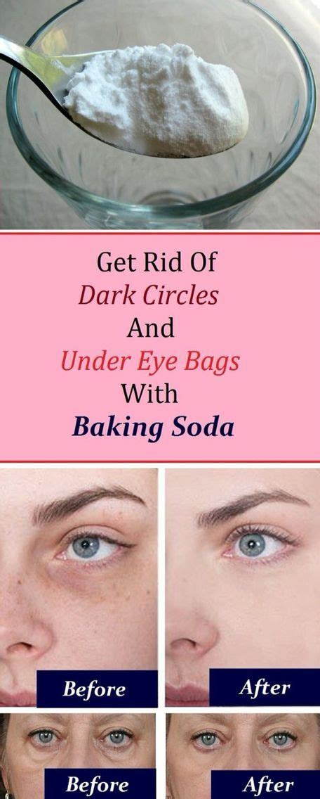 7 Best Treatments For Eye Circles by 25 Best Ideas About Circles Makeup On
