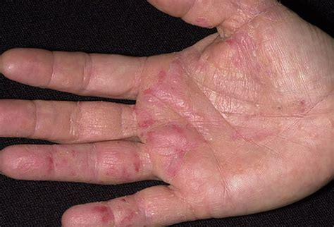 can stress cause a light period common skin problem pictures identify rashes