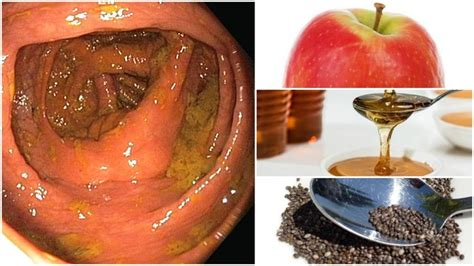 Toothache While Detoxing by How To Cleanse Your Colon Naturally At Home Diy Colon