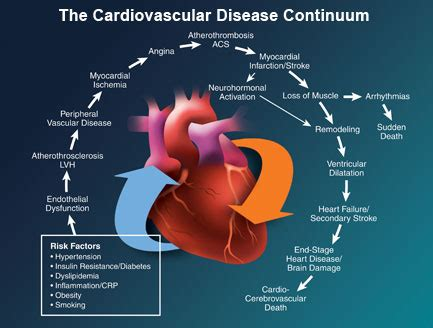 the cardiac killer video scam heart disease archives awaremed