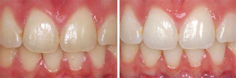 Tanden Polijsten Voor Bleken by Professioneel Tanden Bleken Bij The Bleach Company