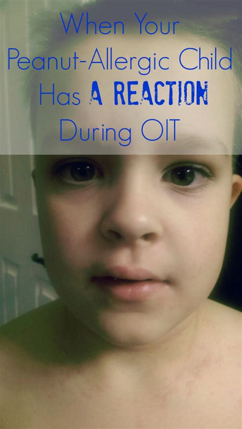 What Do You Call The Detox Reaction by When Your Peanut Allergic Has A Reaction During Oit