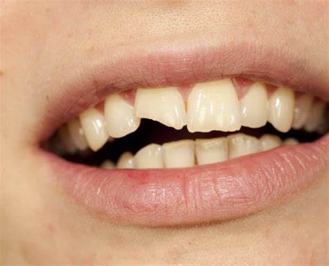 affordable teeth fillings bonding  melbourne boxhill