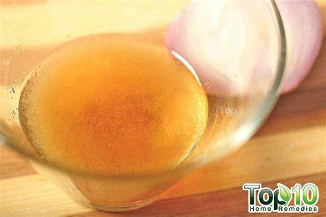 diy sun therapy l diy homemade onion juice and honey hair loss treatment