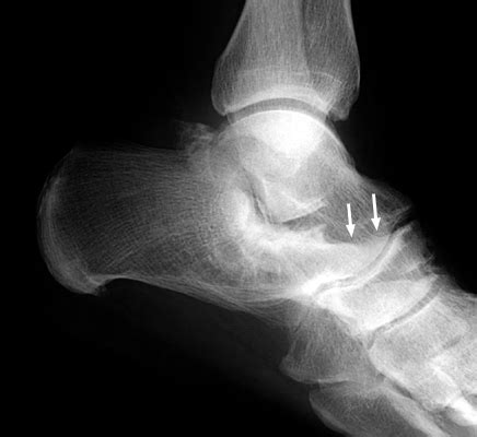 tarsal coalition   treatment bone  spine