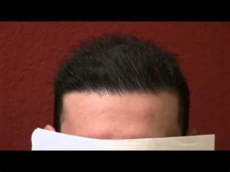 pics of scalp micropigmentation on people with long hair repair bad scalp micropigmentation tattoo hair transplant