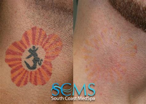 remove tattoo with laser laser removal gallery before and after laser