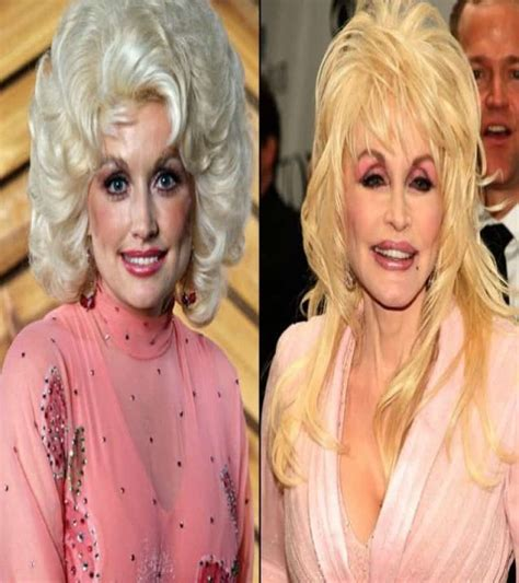 worst celeb plastic surgery worst botox celebrities worst botox celebrities 10 worst