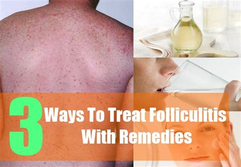 folliculitis treatment 3 home remedies for folliculitis