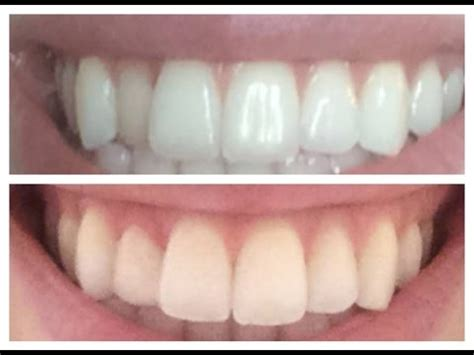 How To Fix Crooked Teeth At Home by Fixing A Crooked Tooth Inexpensively Quot Dental Composite Overlay Quot