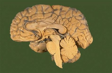 ode to the brain positiveneuro cerebro corte sagital imagui