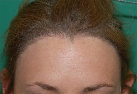 hairstyles for frontal hair loss in women frontal fibrosing alopecia treatment