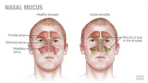 what color is your mucus mayo clinic q and a nasal mucus color what does it