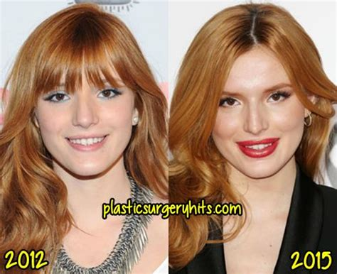 Plastik Naso thorne plastic surgery before and after plastic