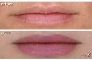 lip liner tattoo toronto permanent makeup for lips call dr white at carolina