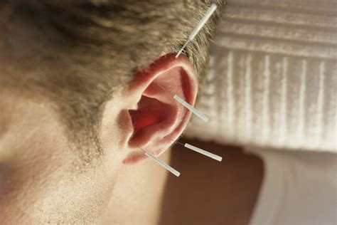 Can Acupuncture Help With Detox by Acupuncture To Quit Can It Help