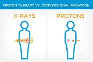 Proton Beam Radiation Side Effects Vault Provision Cares Proton Therapy Center