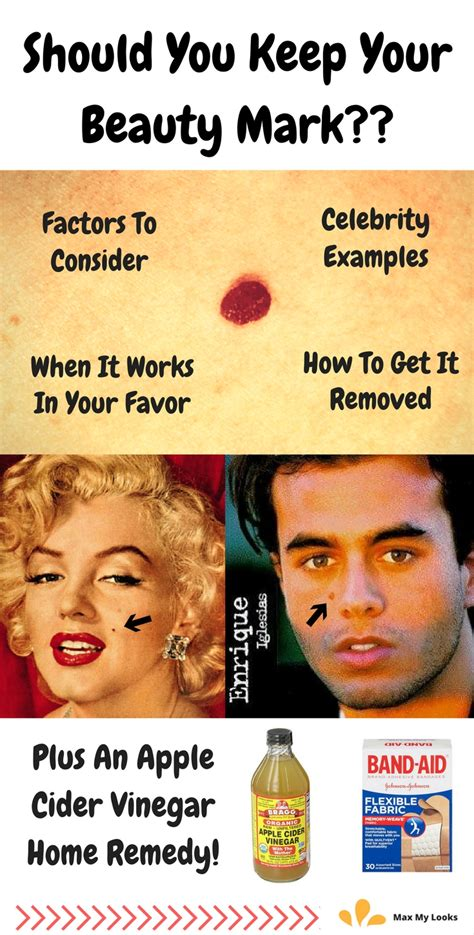 what of should you get should you get your removed