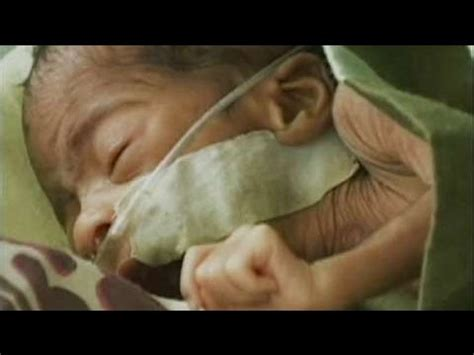 in memory of the premature babies lost to hypothyroid moms in memory of the premature babies lost to hypothyroid moms