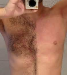 excess pubic hair techniques for chest hair removal male pubic hair shaving