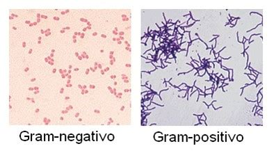 imagenes gram positivos gram positiva clara aline