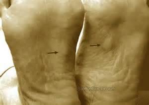 plantar fibromatosis symptoms causes pictures treatment