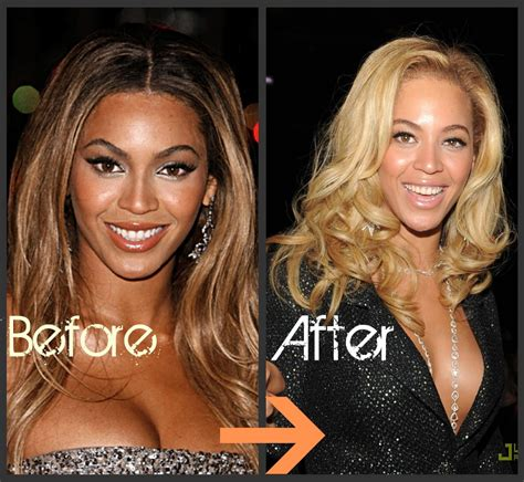 beyonce skin color skin bleaching without health hazard jiji ng