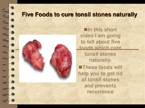 five foods to cure tonsil stones naturally http
