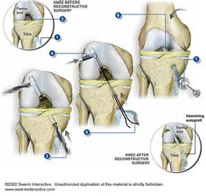 Acl reconstruction with hamstring orthoneuro