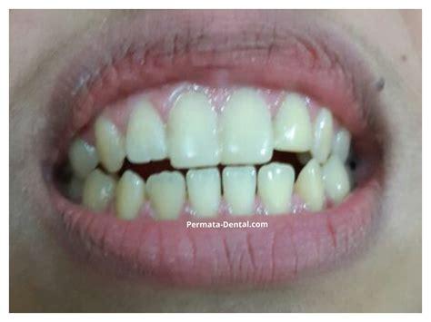 Minyak Lintah Di Jember atasi masalah gigi dengan berkumur minyak kelapa