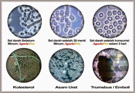 Produk Herbal Agaricpro agaricpro herbal agaricpro obat herbal multi khasiat