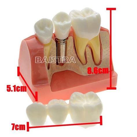 coronas de resina coronas de resina en odontopediatria