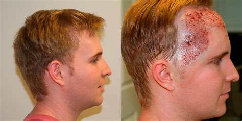 correct haircut transplant hairstyle ideas after transplant best healthy