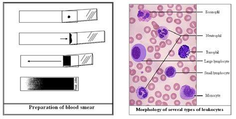 Mba Neutrophil Blood Preparation differential leukocyte count dlc medicoinfo