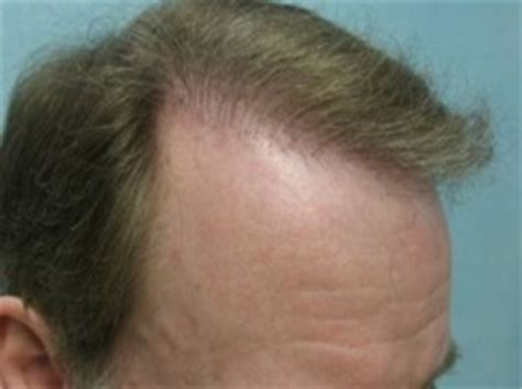 hair thinning at temples and top temple hair transplant dermhair clinic los angeles 1 310