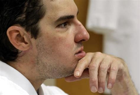 richard norris face transplant patient s new life ny daily news
