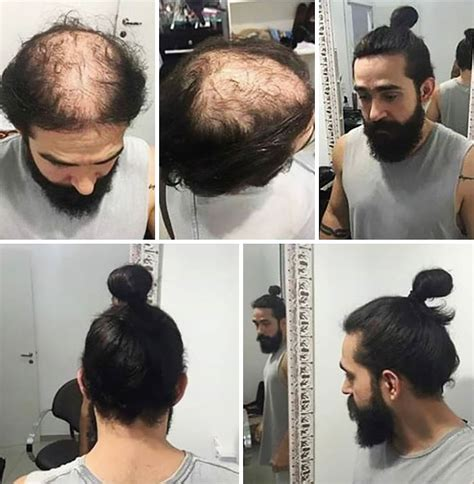 hombre hair meme men are hiding baldness with man buns but it s riskier