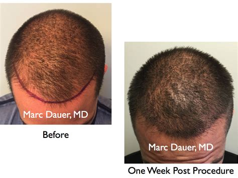 rolando model hair transplant testimonials reviews about when can i get a haircut after fue hair transplant