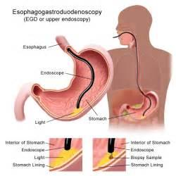 Do Proton Inhibitors Cause Weight Gain Gastroesophageal Reflux Disease Gerd Or Heartburn