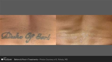 laser tattoo removal south jersey laser removal new jersey vein laser centernew