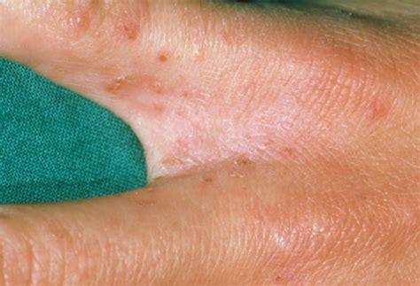 scabies treatment scabies rash pictures symptoms treatment causes
