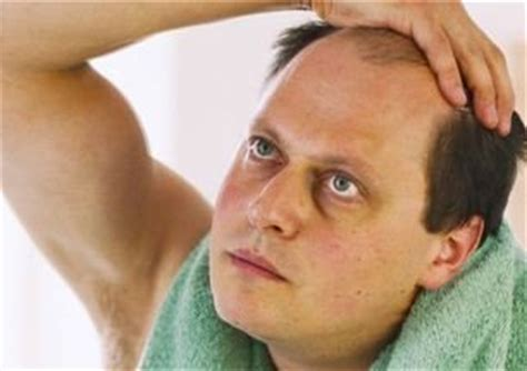 receding hairline plus gray hair avoid receding hairline for men visihow