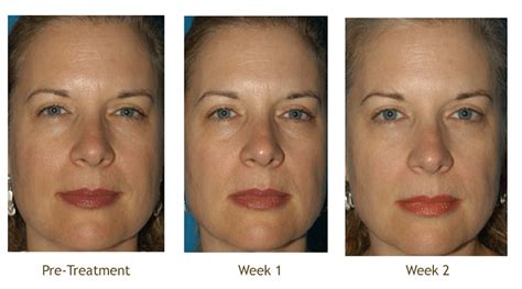 Detox Before And After Surgery by Detox San Francisco Stem Cell Treatment Center