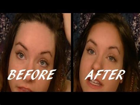 why re big foreheads unattractive shrink your forehead in seconds beauty tip youtube
