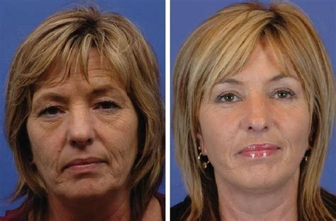 hairstyles for an aging face with jowls what type of haircut for a face with sagging jowls