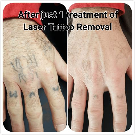 tattoo removal after one treatment gallery c h laser treatments removal gloucester