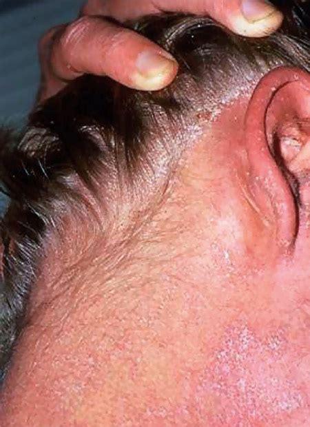 thrive patch skin irritation a health magazine