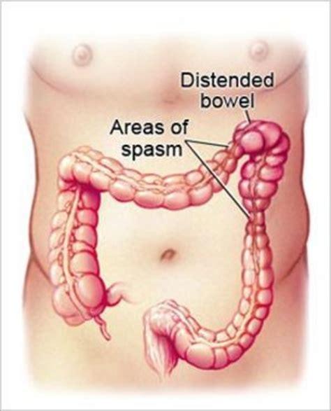 Mucus In Stool Ibs Symptoms by Irritable Bowel Colitis Mucous Colon Irritable
